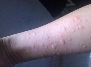 荨麻疹对身体的危害有哪些?如何防治?